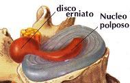 disco-erniato.jpg